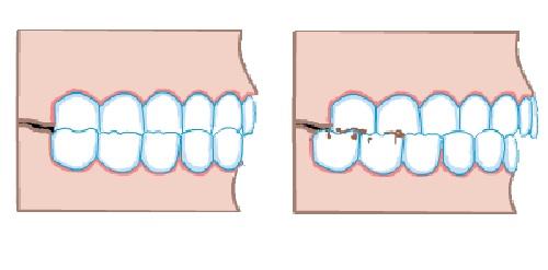 عوامل مؤثر دندانقروچه