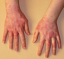 بازبینی آلرژی لاتکس(۲) (بخش پایانی)