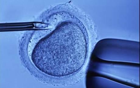 اوتیسم، عقبافتادگی روانی و IVF