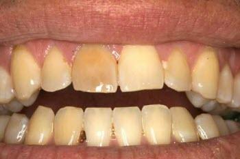 علت بدرنگ  شدن دندانها