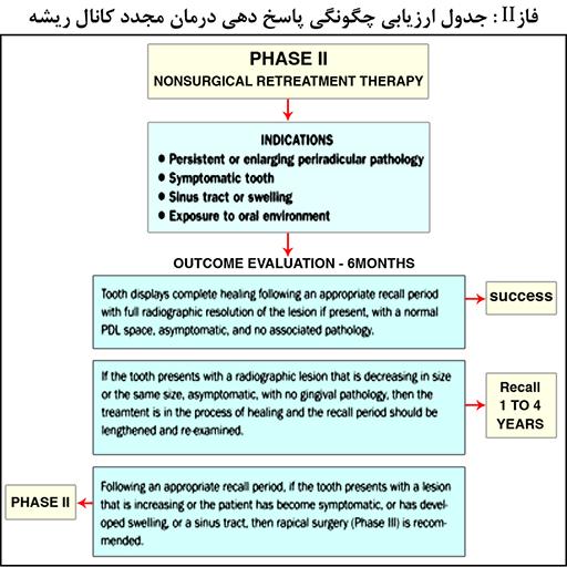 مراحل درمانی کانال ریشه