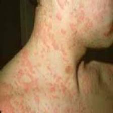 آنافیلاکسی ایدیوپاتیک
