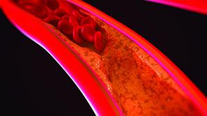 مصرف مکملهای کلسیم و حمله قلبی