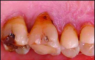 ازدیاد حساسیت دندان(۲)