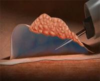 ابزار ترکیبی سوزن تزریقی ـ اسنیر نتایج EMR را بهبود میبخشد