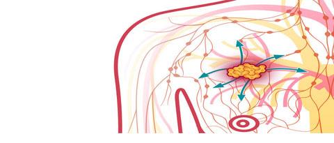 سرطان سینه،متشکل از چند بیماری مختلف