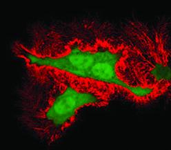 اثر سایتوتوکسیک ویروس ابولا