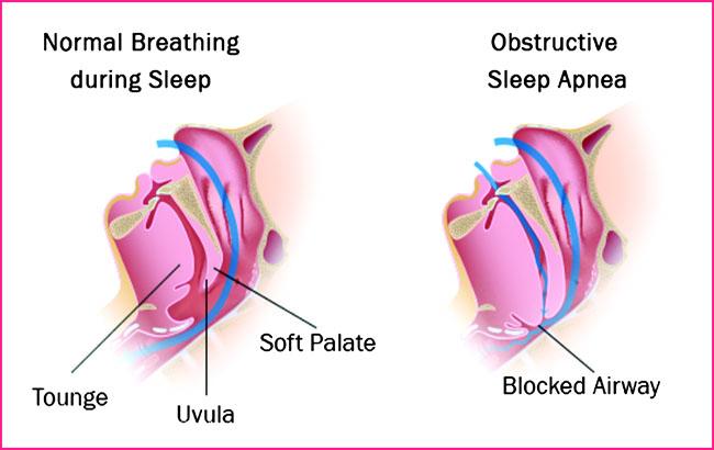 خطر وقفههای تنفسی حینخواب