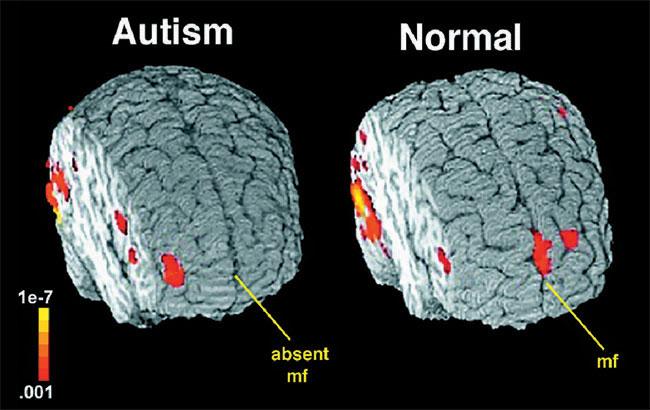تصاویر امآرآی در کودکان مبتلا به اوتیسم