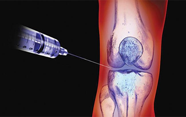 درمان آتی استئوآرتریت توسط ذرات نانو