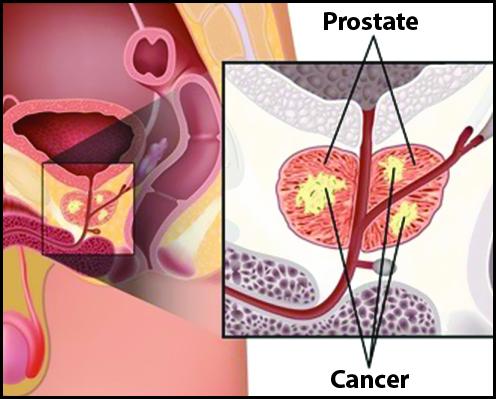 مرگومیر کمتر در تومورهای غیرمهاجم پروستات