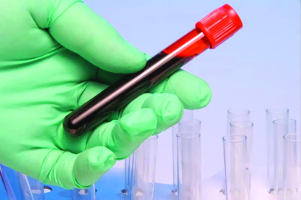 پیشبینی عود سرطانپستان با آزمایشخون جدید