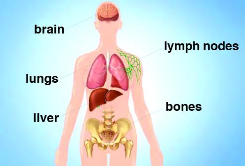 نقش پروتئین ALK1 در متاستاز سرطانپستان