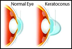 تسریع بهبودی بافت چشم پس از جراحی