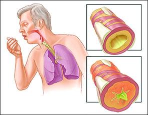 کاهش مدتزمان تهویه مکانیکی در ICU