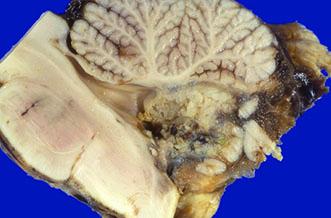 پرتوی پروتونی در سرطان مغز کودکان