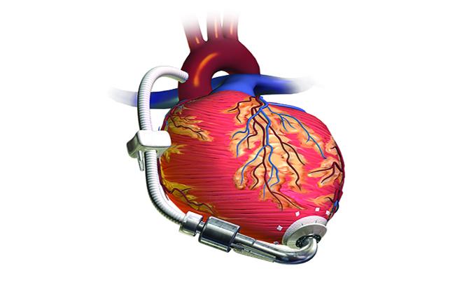 درمان جدید نارسایی قلب کودکان