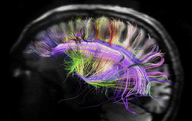 تصویربرداری مغز در روانپزشکی
