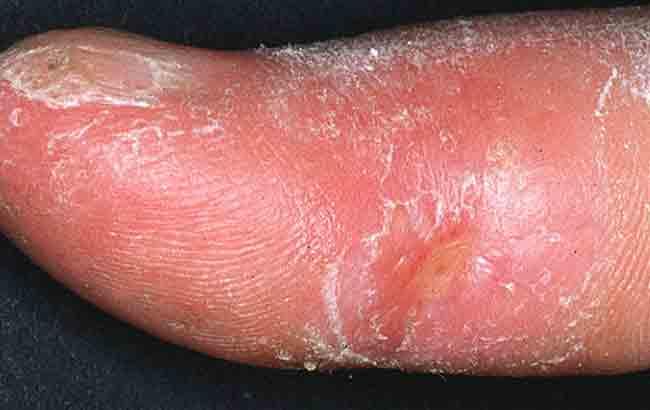 HSCT بهتر از سیکلوفسفامید وریدی ماهیانه در درمان سختی پوستی