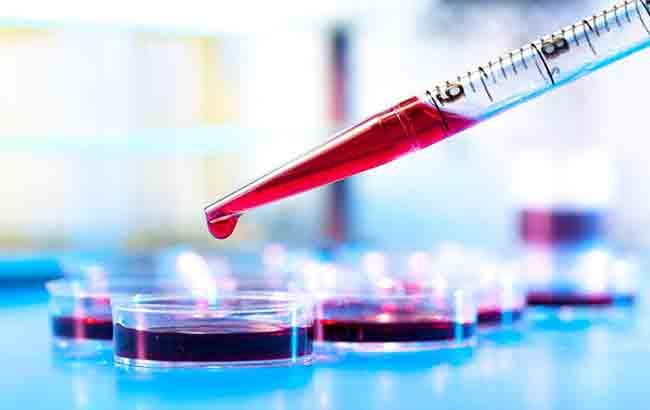 آزمایش خون، میتواند خطر بیماری قلبی خاموش را پیشبینی کند