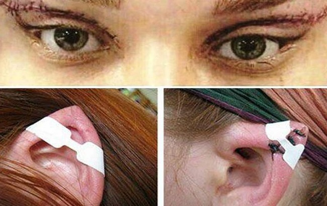 واکنش رییس انجمن جراحان پلاستیک به جراحیهای گوش الاغی در کشور