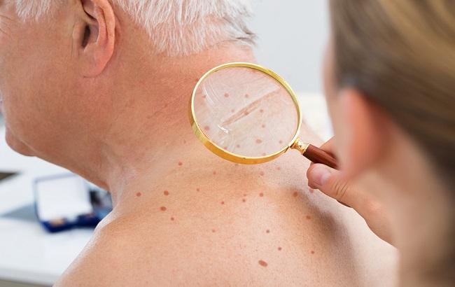پیشرفتهای نوین در درمان ملانوم بدخیم