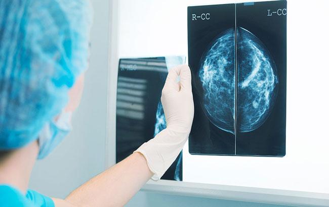 ماموگرافی سالیانه از چهلسالگی