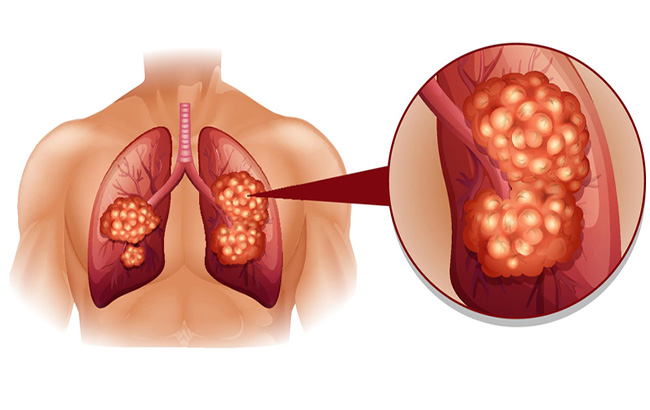 خـط مشی جدید غربـالگری سرطان ریه