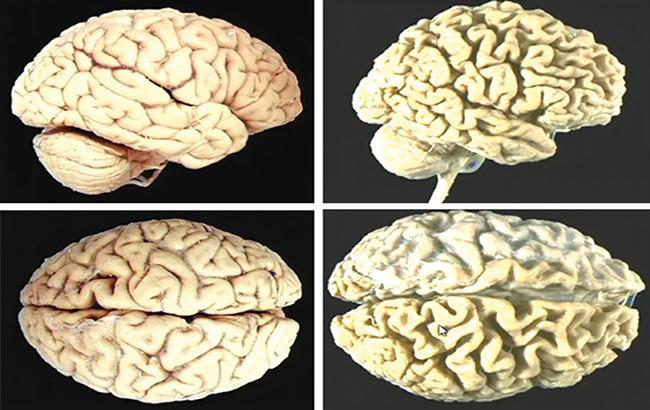 پیشگیریاز آتروفی مغزی با رژیمغذایی مدیترانهای