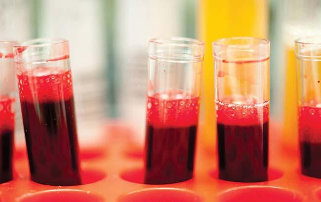 آزمایش خون جدید جهت پاسخ به درمان سرطانپروستات