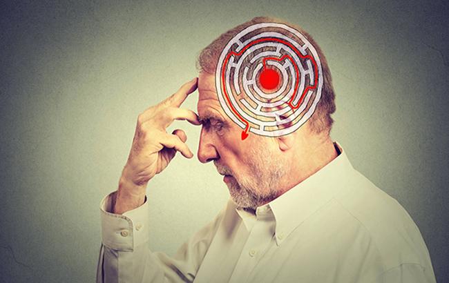 کشف مسیر جدید در مغز، نتایجی برای درمان اسکیزوفرنی دربردارد