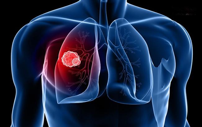 آزمایشخون مؤثر برای شخصیکردن درمان سرطانریه