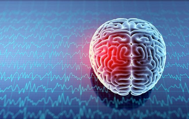برپایی کارگاه نقش تحریک الکتریکی مغز در توانبخشی بیماران مبتلا به سکته مغزی