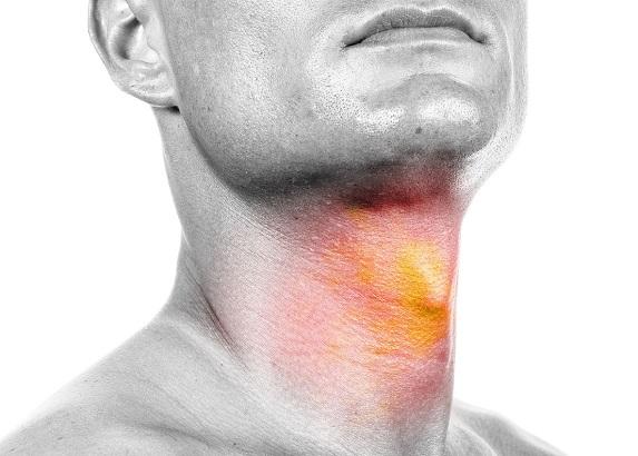 دستورالعمل جدید تشخیص تودههای  سر و گردن