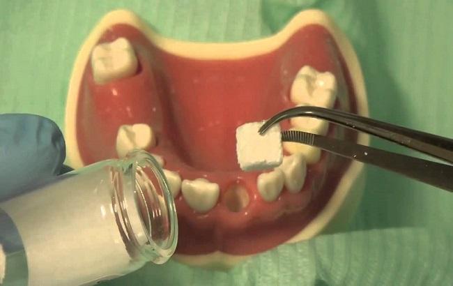 مروری بر خواص کلاژن و کاربرد آن در دندانپزشکی