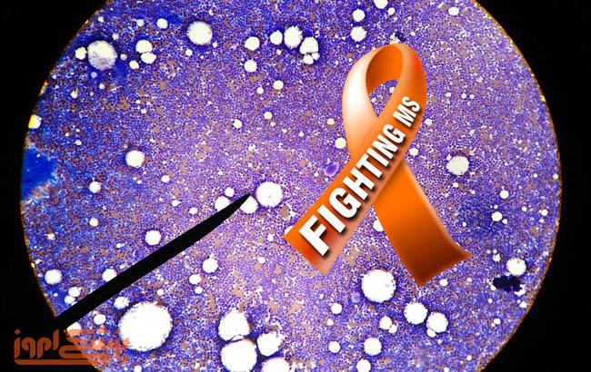 درمان بیماری ام اس با استفاده از سلولهای بنیادی مزانشیمی