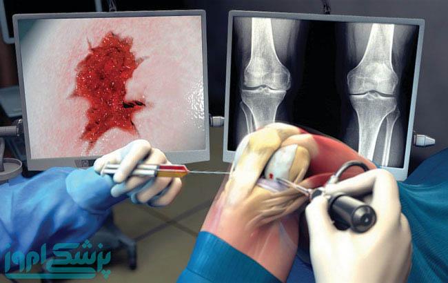 گامهایی به سمت هیدروژن قابل تزریق در درمان آرتروز زانو