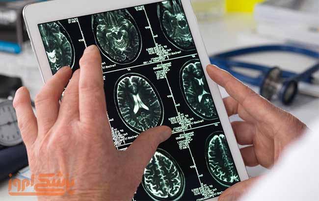 اشتباه تشخیص در بیماری ام اس (MS)
