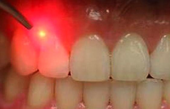 تشخیص پوسیدگی دندان با لیزر