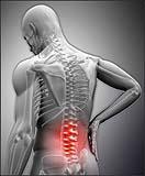 اثرات لیزرهای کمتوان در کنترل درد