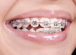 سن بریس دندان