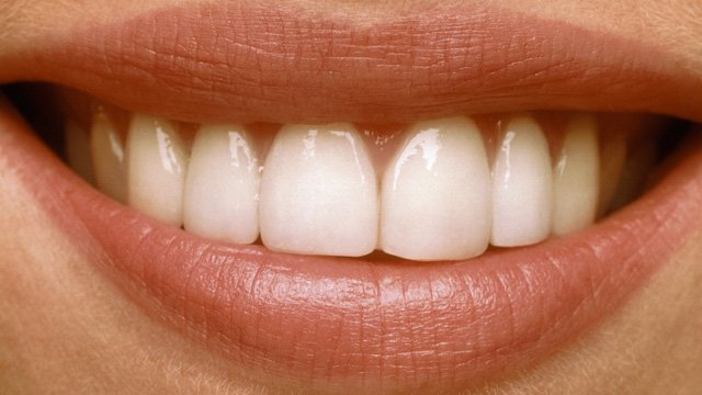 نسخههای یادآور (محلول ترکیبی بعد از جراحی دهان)