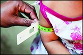 شاخص تشخیص سوءتغذیه
