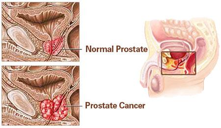 درمان اختصاصی برای انواع سرطان پروستات