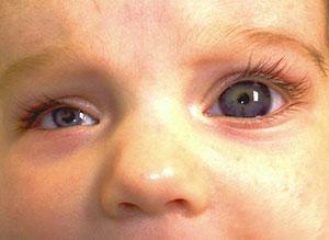شناسایی ژن جدید کولوبوما چشمی