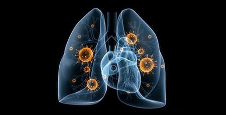 تستتنفسی در تشخیص پنومونی قارچی