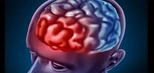 مهارکنندههای بتاسکرتاز برای درمان بیماری آلزایمر