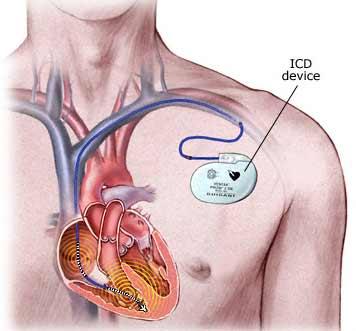 کاشت ICD و لزوم تحرک بعدی