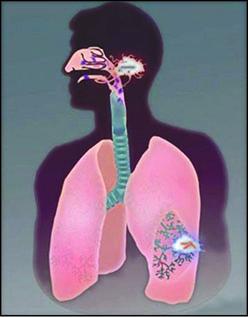 پنهانکاری باکتری سل برای نفوذ به عمق ریه