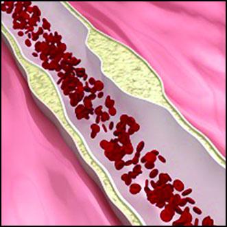 پیشگیری از فیبریلاسیون دهلیزی با بوتاکس